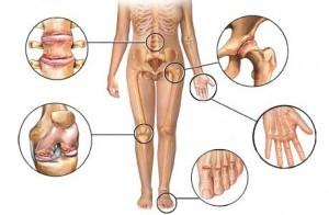 osteo%20arthritis